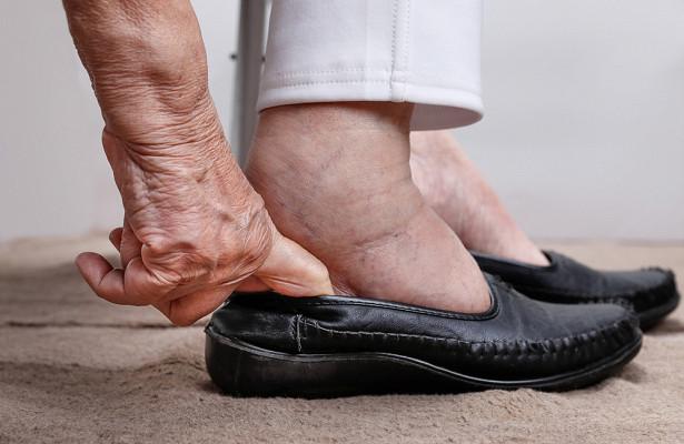 Врачи заявили, чтоотек ногможет быть симптомом цирроза печени