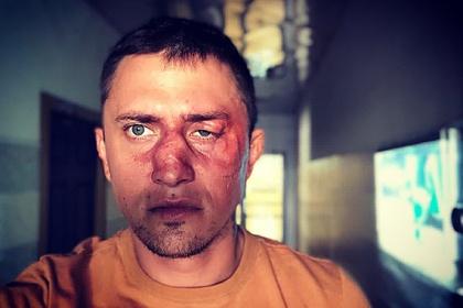 «Подрался забабушку вгей-клубе»: Прилучный прокомментировал травмы