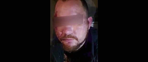 «Истринский педофил» госпитализирован из-заразрыва органов