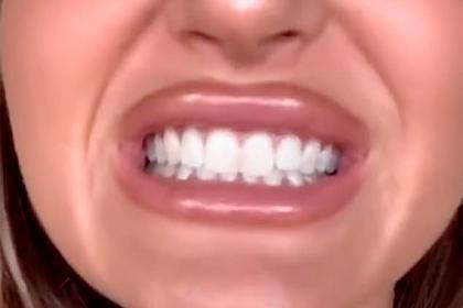Флешмоб поотбеливанию зубов напугал врачей